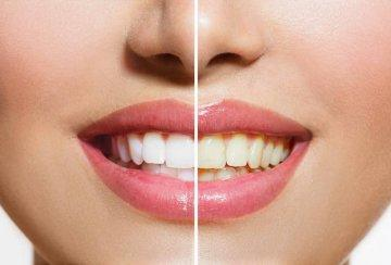 Before and after teeth whitening | RT Dental
